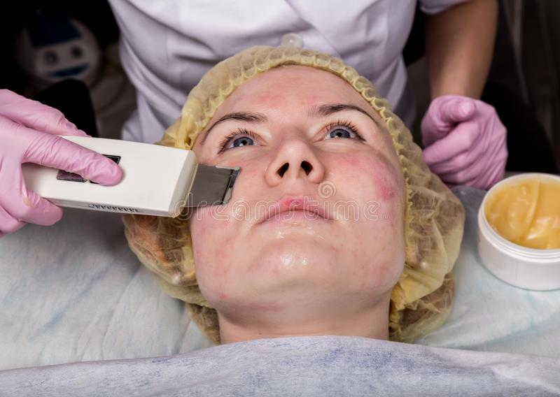 Beautician at work. Ultrasonic face cleaning procedure for problem skin. Pore cleansing, oxygen saturation for woman`s royalty free stock photo