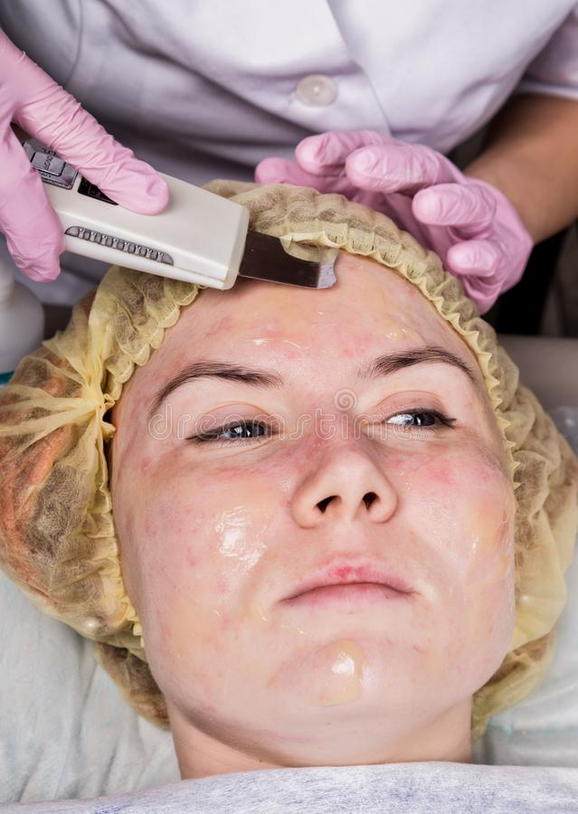 Beautician at work. Ultrasonic face cleaning procedure for problem skin. Pore cleansing, oxygen saturation for woman`s stock photos
