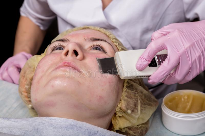 Beautician at work. Ultrasonic face cleaning procedure for problem skin. Pore cleansing, oxygen saturation for woman`s royalty free stock image