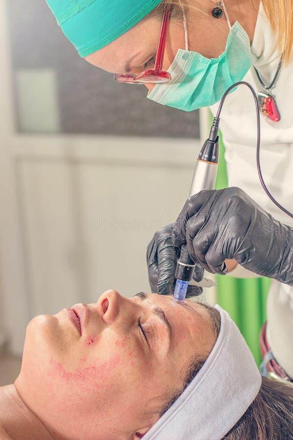 Beautician wykonuje igielnego mesotherapy traktowanie na kobiecie fa zdjęcia royalty free
