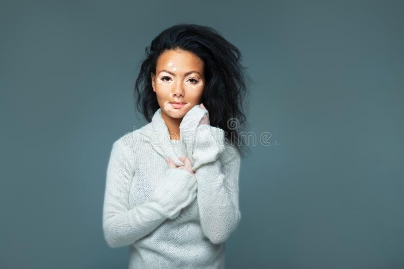 Beautiful African girl in studio with skin problems. Vitiligo studio shooting royalty free stock photo