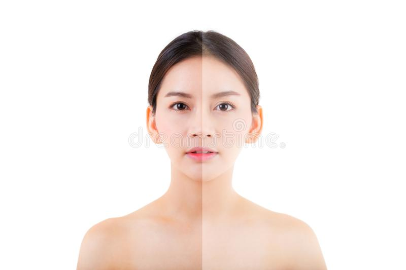 Beautiful asian young woman on a white background, beauty concept. Retouch before and after.face divided in two parts, poor condition the skin in good royalty free stock photo