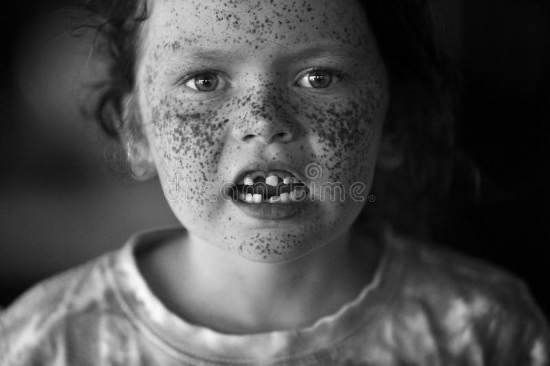 A beautiful child with freckles and missing teeth stock photos