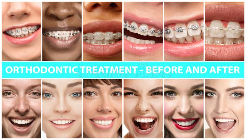Beautiful close up portraits, concept of teeth treatment. Beautiful close up male and female portraits. Concept of beauty, correction, treatment and teeth royalty free stock images