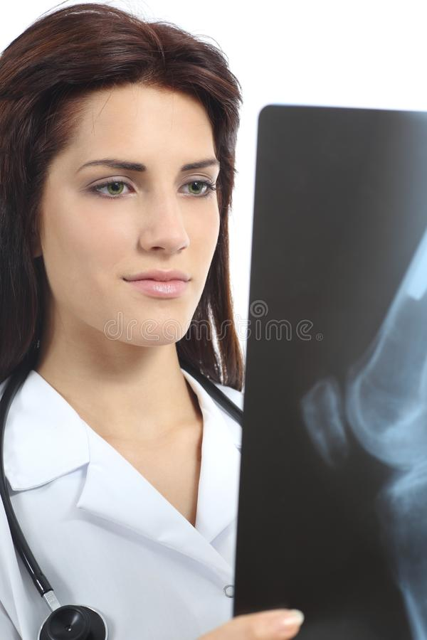 Beautiful doctor woman looking a radiography of a knee royalty free stock photography