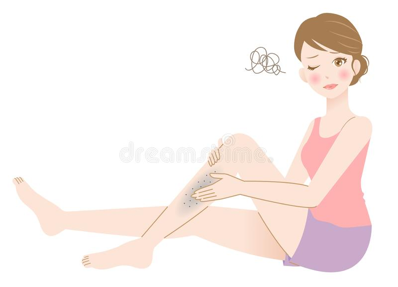 Beautiful female with troubled leg skin illustration for health and skin care. Young woman touching dark spots on her leg isolated on white background. beauty vector illustration