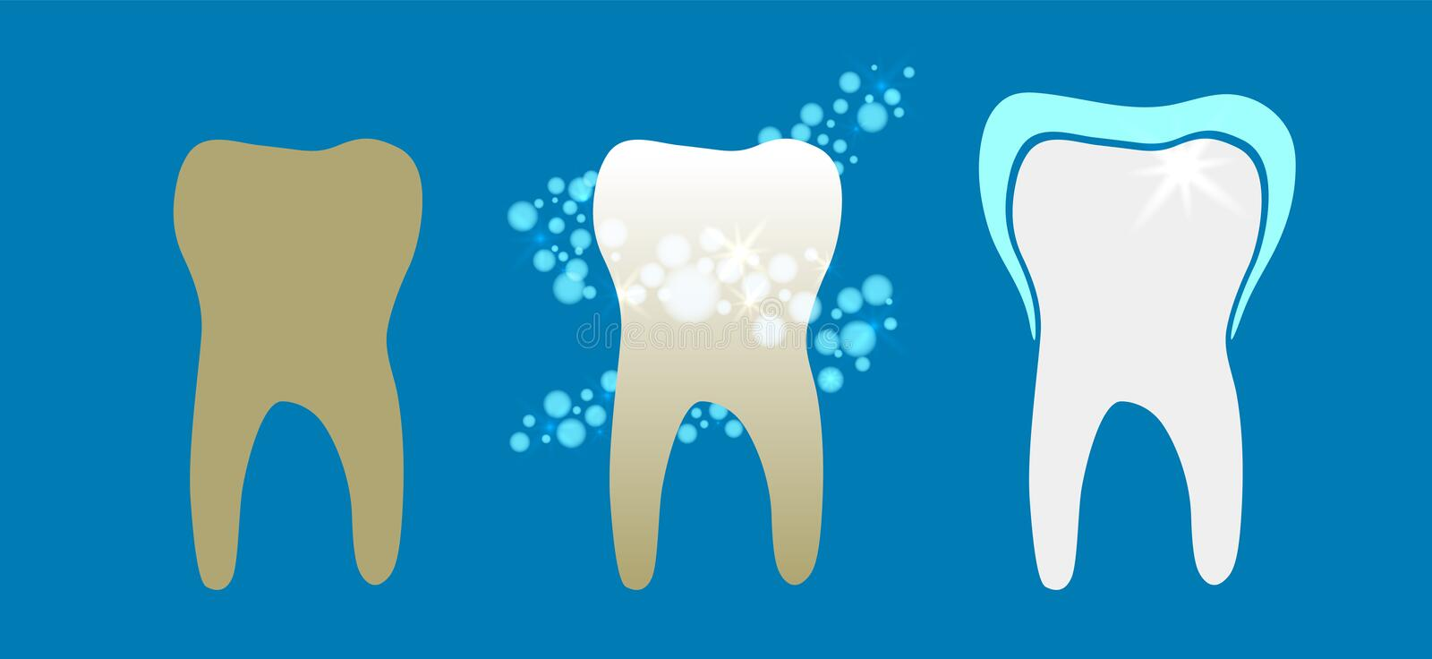 Beautiful flat dentist vector set of teeth cleansing process with decayed, cleansed and white shiny teeth on blue background.  royalty free illustration