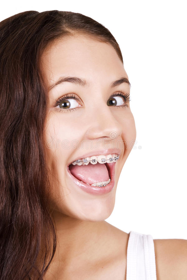 Beautiful Girl With Braces Royalty Free Stock Image