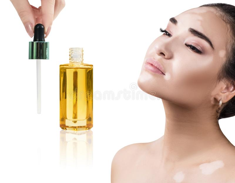 Beautiful girl with vitiligo use cosmetic oil for beauty. royalty free stock photos