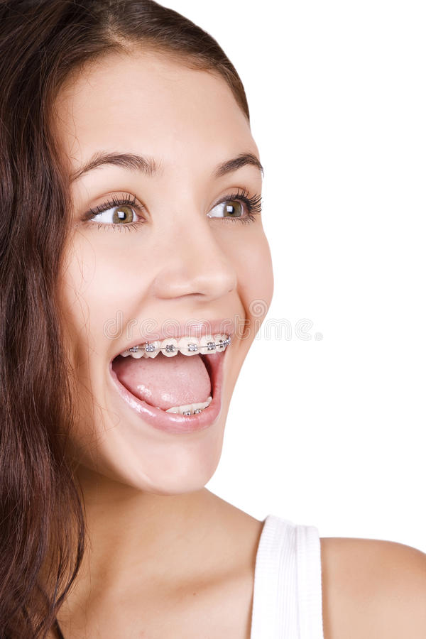 Free Beautiful Girl With Braces Royalty Free Stock Photo - 16571945