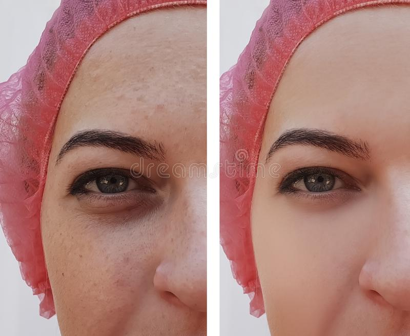Beautiful girl wrinkles on face before and after pigmentation regeneration procedures, pimples stock photo