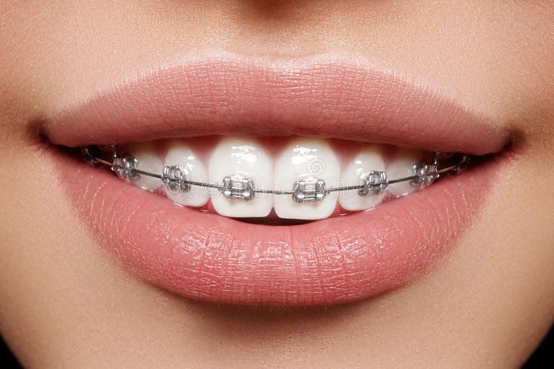 Beautiful white teeth with braces. Dental care photo. Woman smile with ortodontic accessories. Orthodontics treatment. Beautiful macro shot of white teeth with stock images