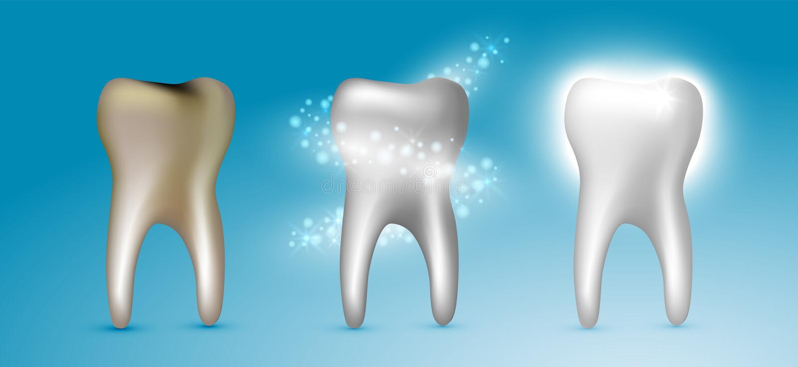 Beautiful realistic dentist vector set of teeth cleansing process with decayed, cleansed and white shiny teeth on blue background.  stock illustration