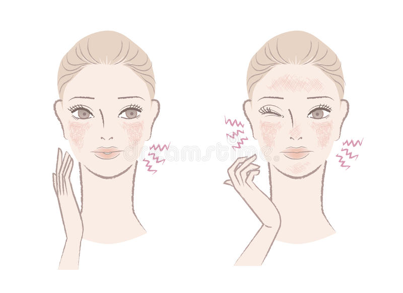Beautiful woman annoyed with ruddy, sensitive skin. Beautiful woman annoyed with the ruddy, sensitive skin - irritation, itch, red complexion. Isolated on white royalty free illustration