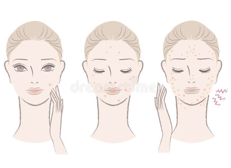 Download Beautiful Woman With Annoying Pimples Stock Vector - Image: 27314713
