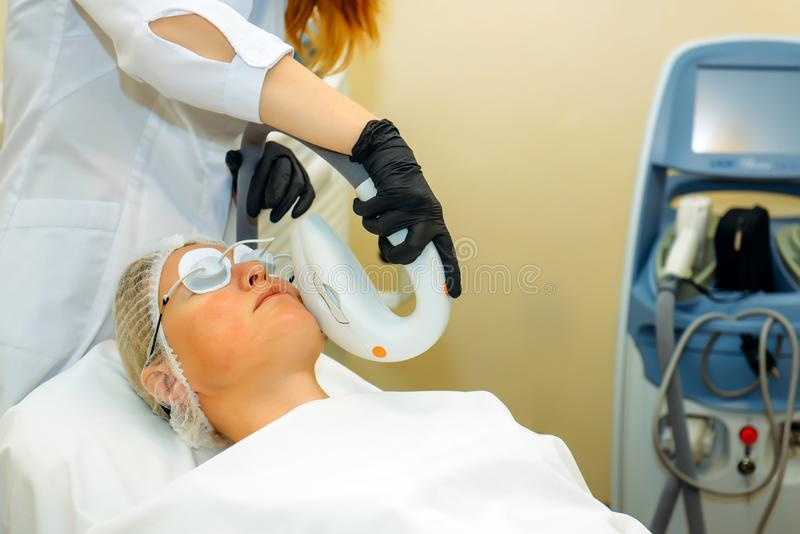 Beautiful woman in cosmetic clinic during photo rejuvenation procedure. Anti acne phototherapy with professional equipment. Laser royalty free stock images
