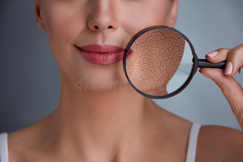 Beautiful woman with a problem on skin royalty free stock images