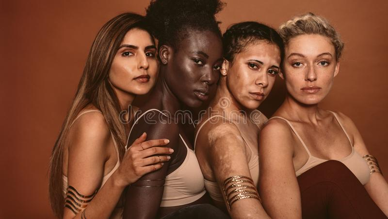 Beautiful women with various skin types royalty free stock photography