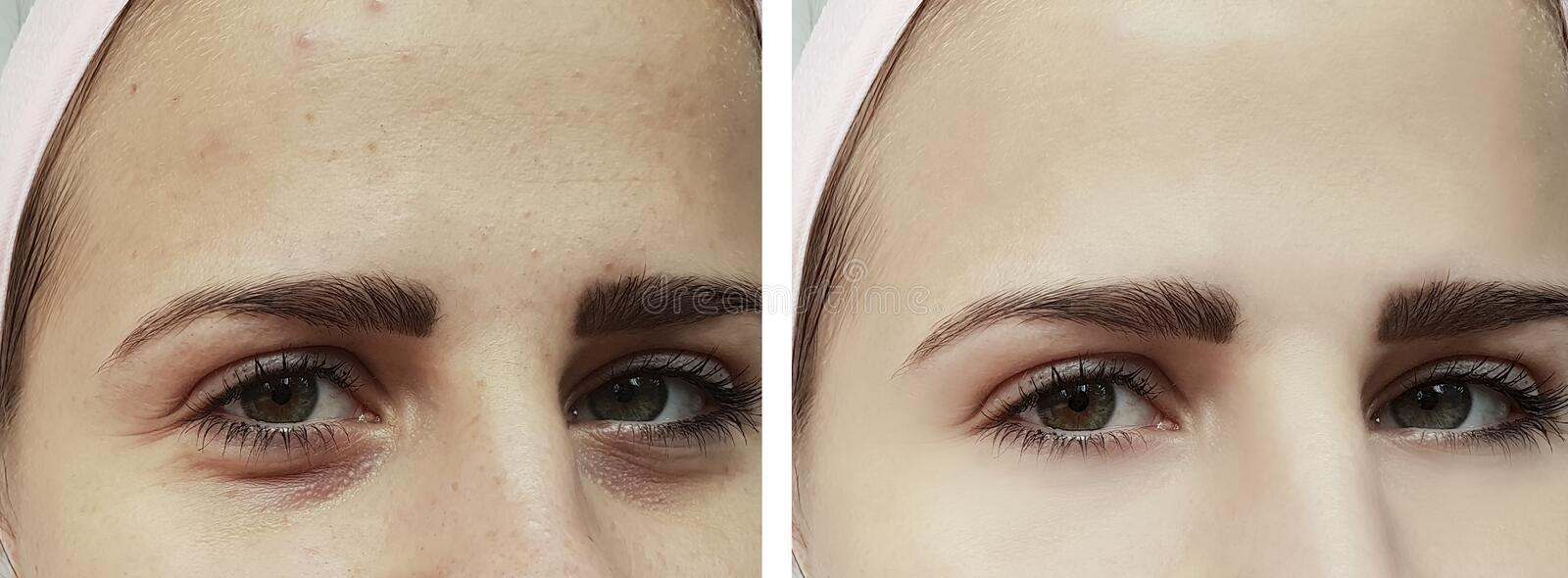 Beautiful young girl acne, bruises under the eyes therapy before and after procedures stock photo