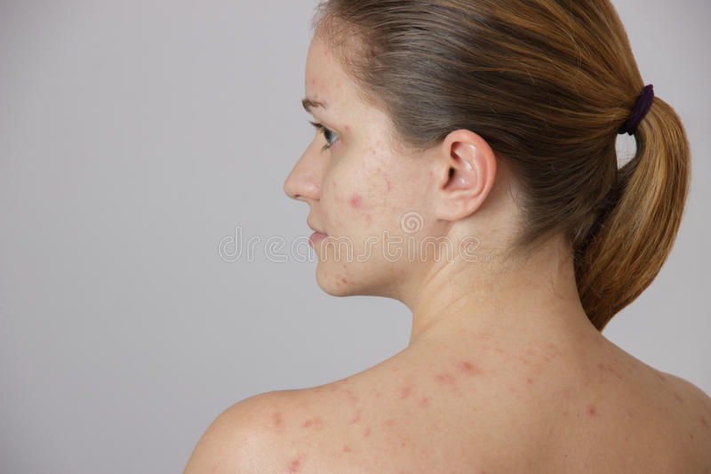 Beautiful young girl with acne on his face and the back on a white background royalty free stock image
