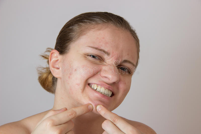 Beautiful young girl with acne on his face and the back on a white background stock photo