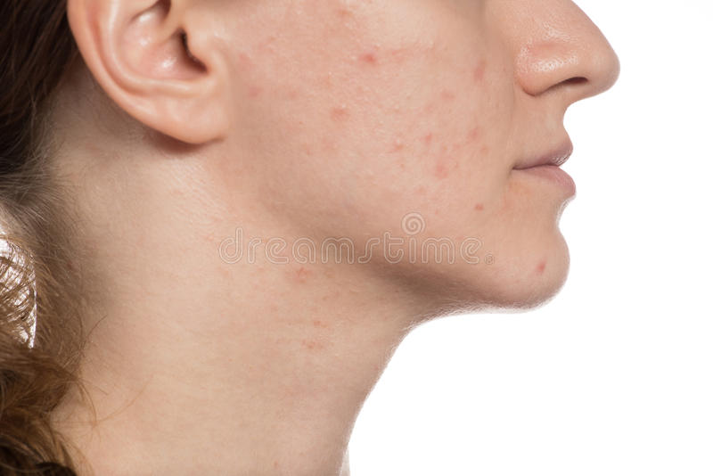 Beautiful young girl with red and white acne on her face. Before stock photos