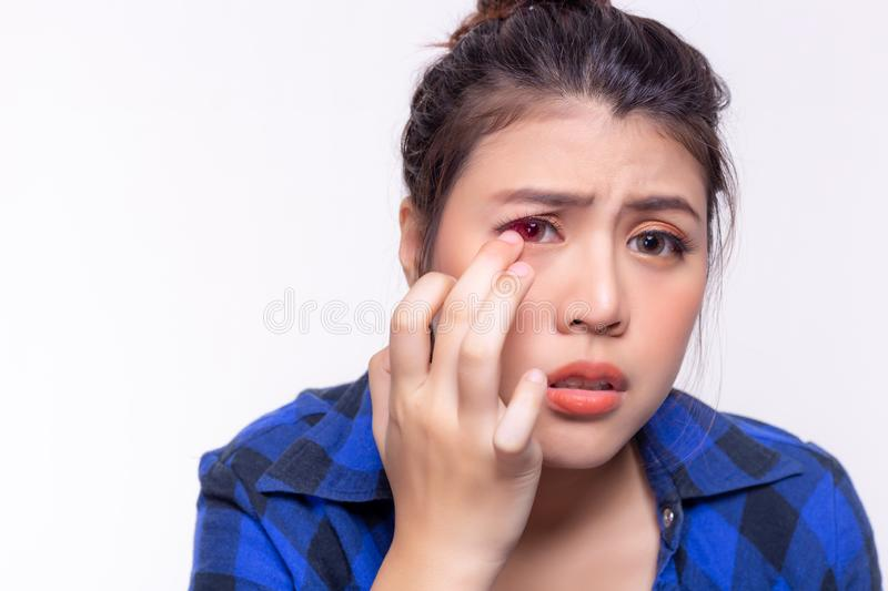 Beautiful young woman get allergic to contact lenses. Young lady gets hurt, painful or irritated eyes. Girl gets conjunctivitis. From dirty contact lenses. It royalty free stock photography