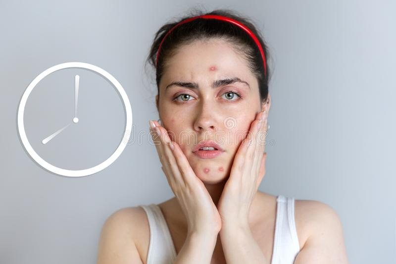A beautiful young woman gets upset about acne on her face. The concept of acne, growing up and cosmetology. Painted clock royalty free stock photography