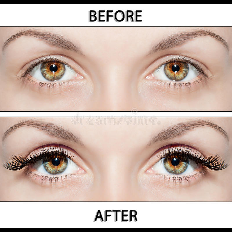 Free Beauty Operations - Placing Artificial Eyelashes Stock Photos - 30277853