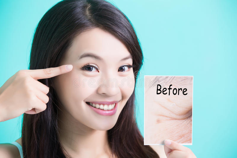 Beauty skincare woman. Take picture and point her eye before and after royalty free stock images