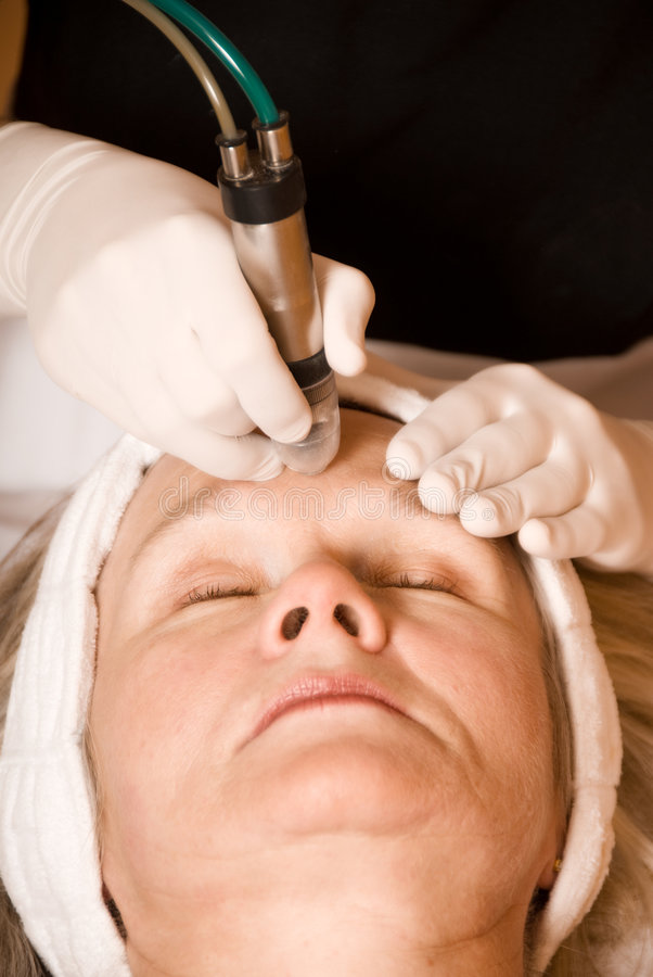 Beauty treatment. Older woman getting electrolysis on he face stock image