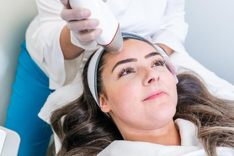 Beauty treatment using microneedling device with radio frequency to tighten skin. Used on the forehead of a woman during treatment. Beauty treatment using micro stock image