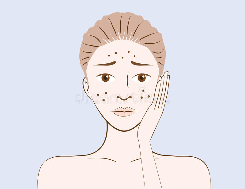 Beauty women have problem acne skin vector illustration