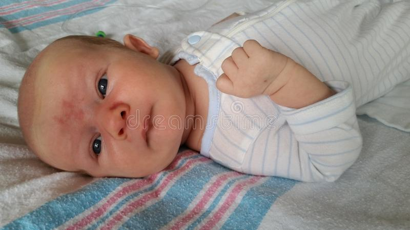 Bebé con Angel Kiss Birthmarks en cara imagen de archivo