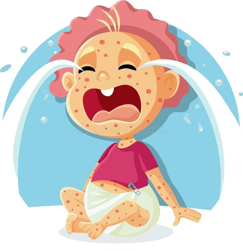 Bebé gritador enfermo con el ejemplo del sarampión stock de ilustración