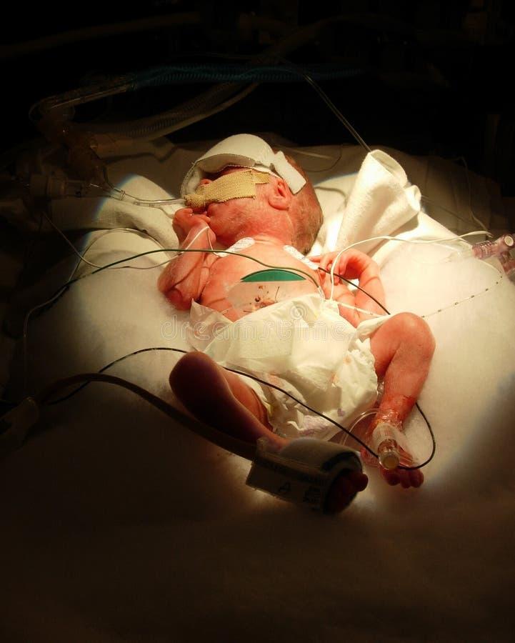 Bebé prematuro una libra imagen de archivo libre de regalías