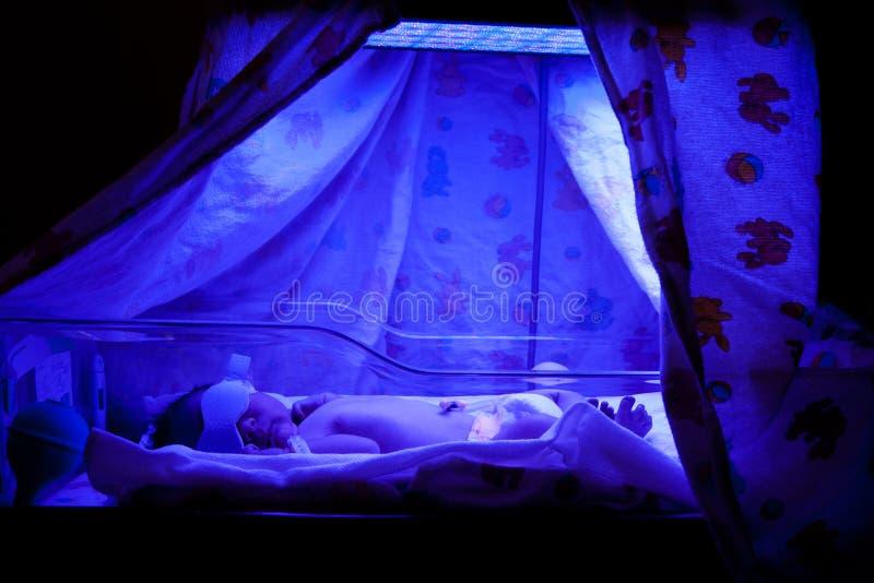 Bebê sob Phototherapy imagem de stock