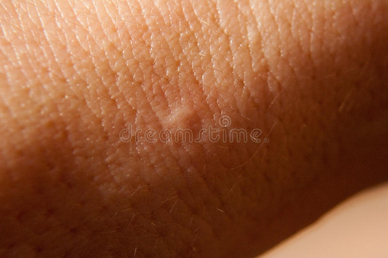 Bed bug bite royalty free stock photos