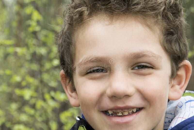 Bederf van de tanden van de jongen. royalty-vrije stock fotografie