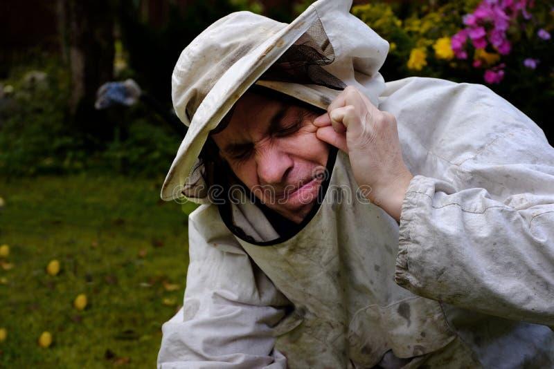 Beekeeper получил укус пчелы стоковая фотография rf