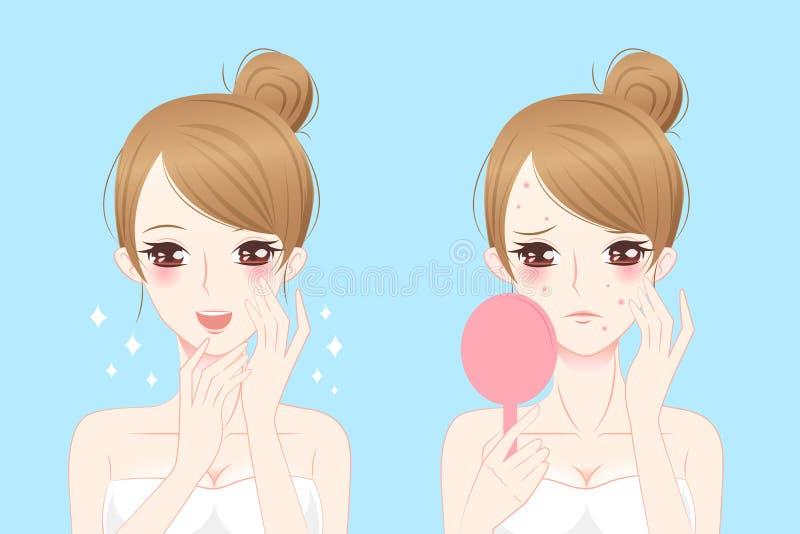Beeldverhaalvrouw met acne vector illustratie