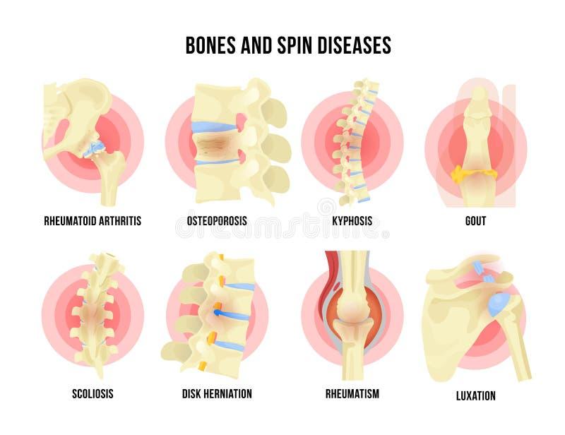 Been en skeletachtige die ziekten met medische namen wordt geplaatst stock illustratie