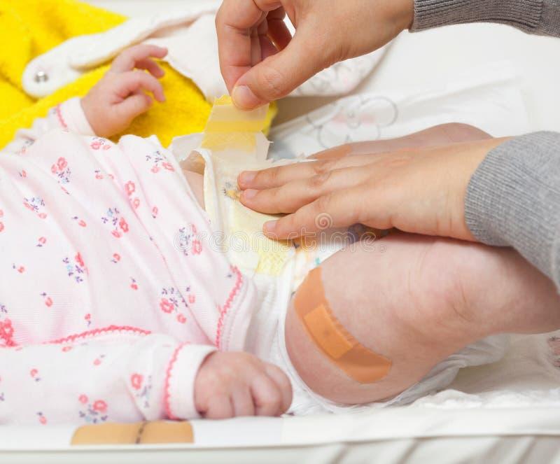 Been van pasgeboren met het flard na inenting royalty-vrije stock fotografie