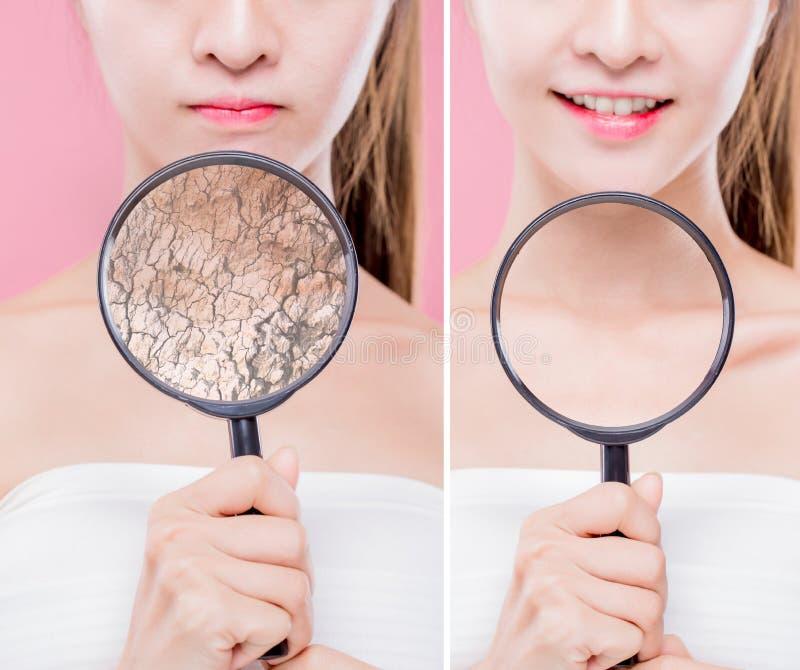 Befeuchtendes Sorgfaltkonzept der Haut stockbild