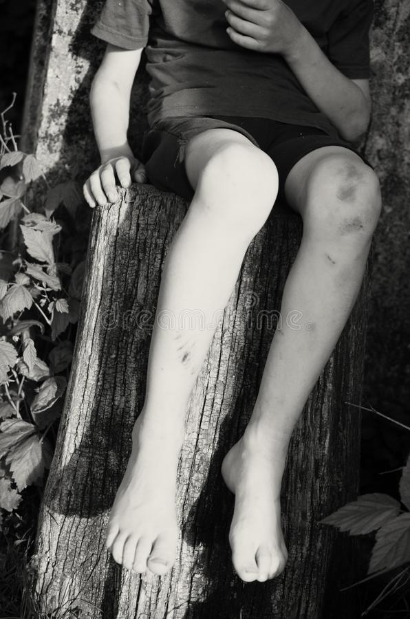 A beggar hungry boy hung his bare feet, sitting on a tree stump. stock photos