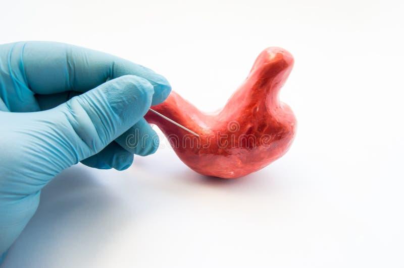 Begrepp av magepunkteringen eller gastrointestinal perforering Handen av kirurgen tränger igenom väggen av modellen av den mänskl arkivfoton