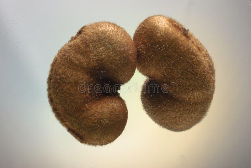 Begrepp av sjukdomar av det njur- systemet och det urin- området royaltyfria bilder