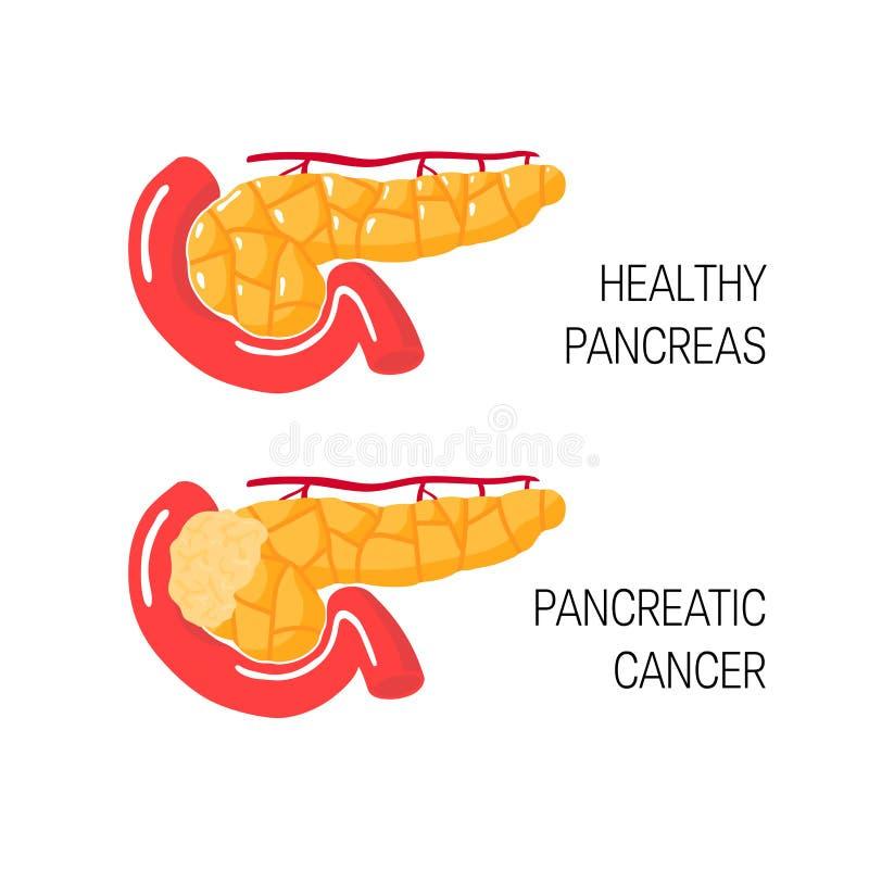 Begrepp för bukspottkörtel- cancer också vektor för coreldrawillustration royaltyfri illustrationer