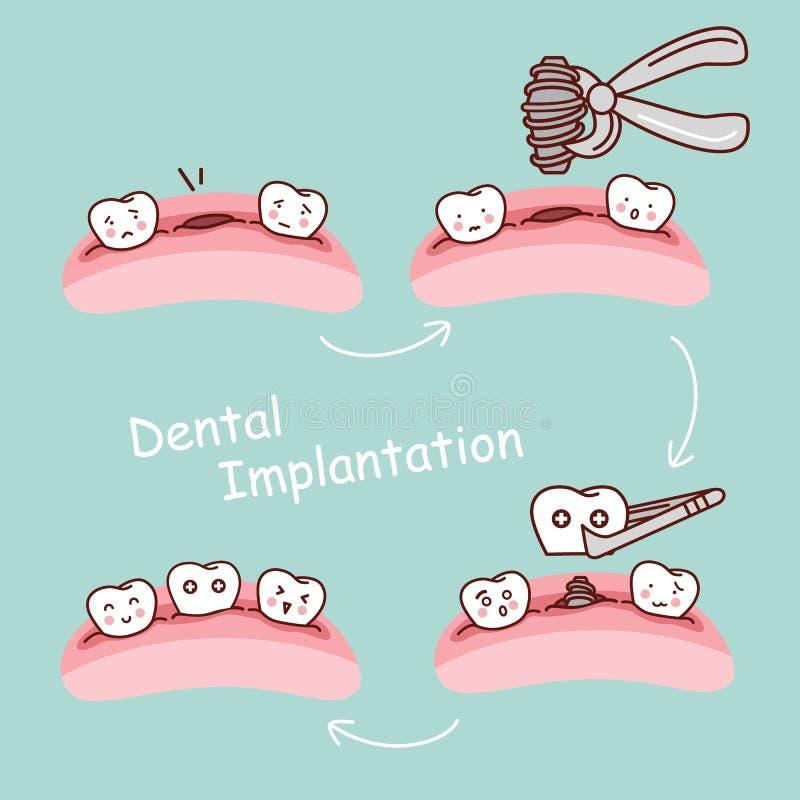 Begrepp för det att inplantera för tecknad filmtand tand- stock illustrationer