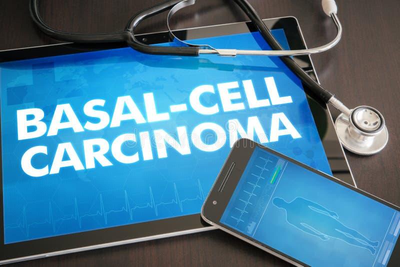 begrepp för diagnos för Grundläggande-cell carcinoma (cancertyp) medicinskt på royaltyfria bilder